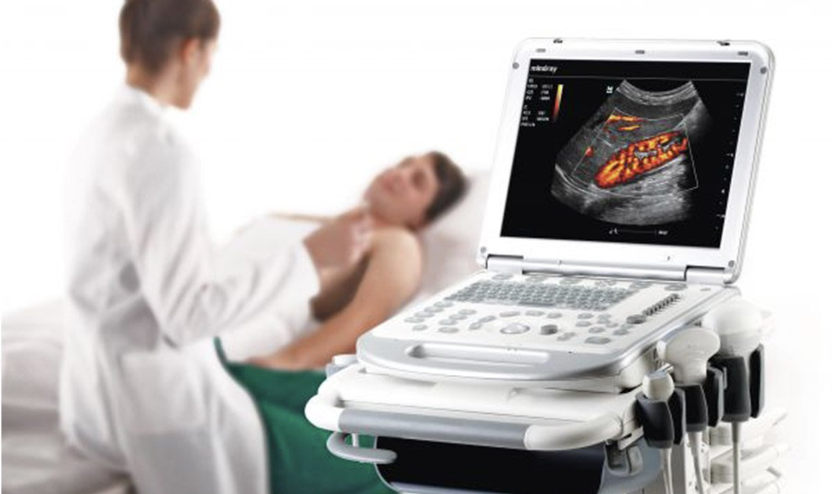 rent ultrasound machines