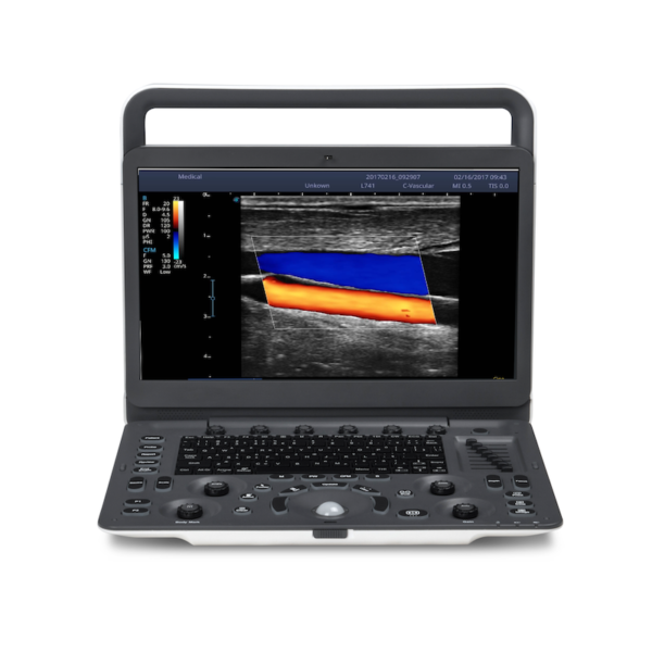 Sonoscape E2 Ultrasound Rental